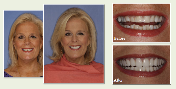Before & After Patient Photos