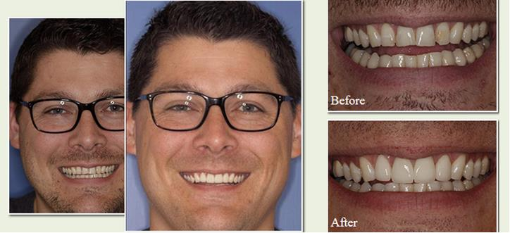 Before & After Veneer Photos of a actual patient of Dr. Robert Mitchell, D.D.S.